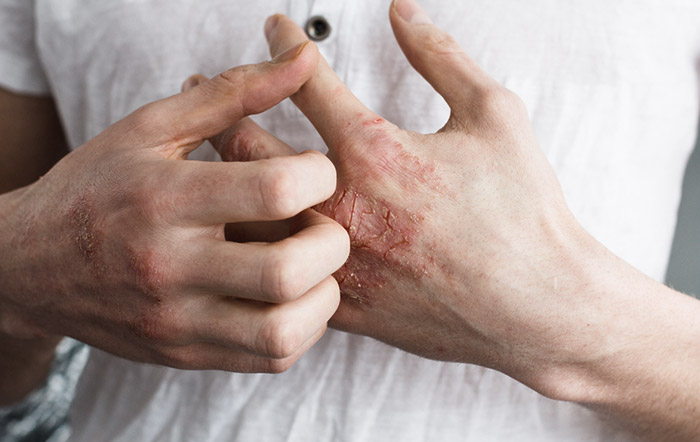 dermatite-de-contato