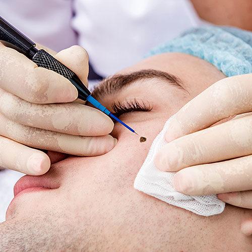 dermatologia-cirurgica